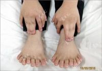 Chinese_boy_with_30_fingers_and_toes_3